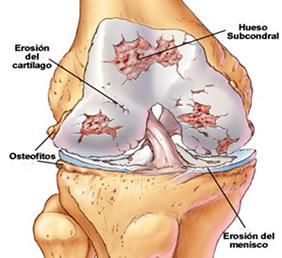 Afecciones rodilla