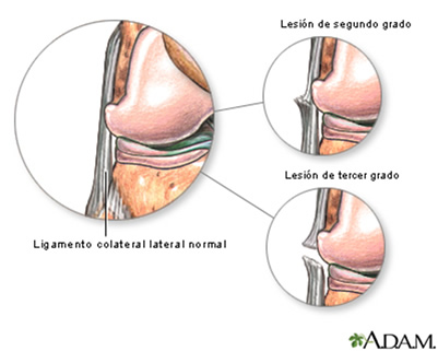 Causa Ligamento Colateral