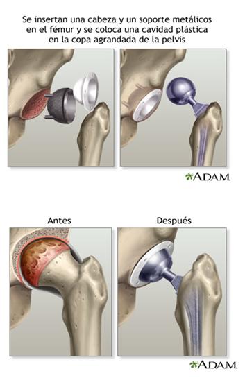 Cirugía de cadera-2