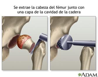 Cirugía de cadera
