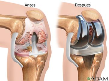 Cirugia de rodilla