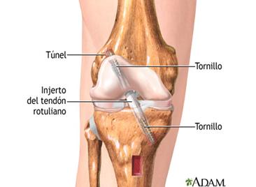 Reparación artroscópica-2