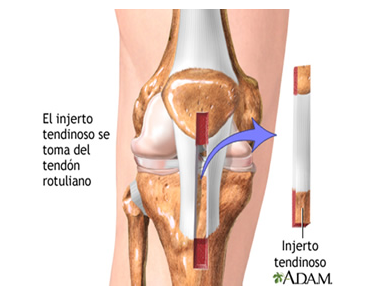 Reparación artroscópica