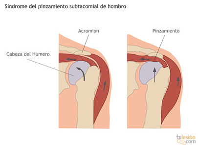 Síndrome del pinzamiento subracomial de hombro
