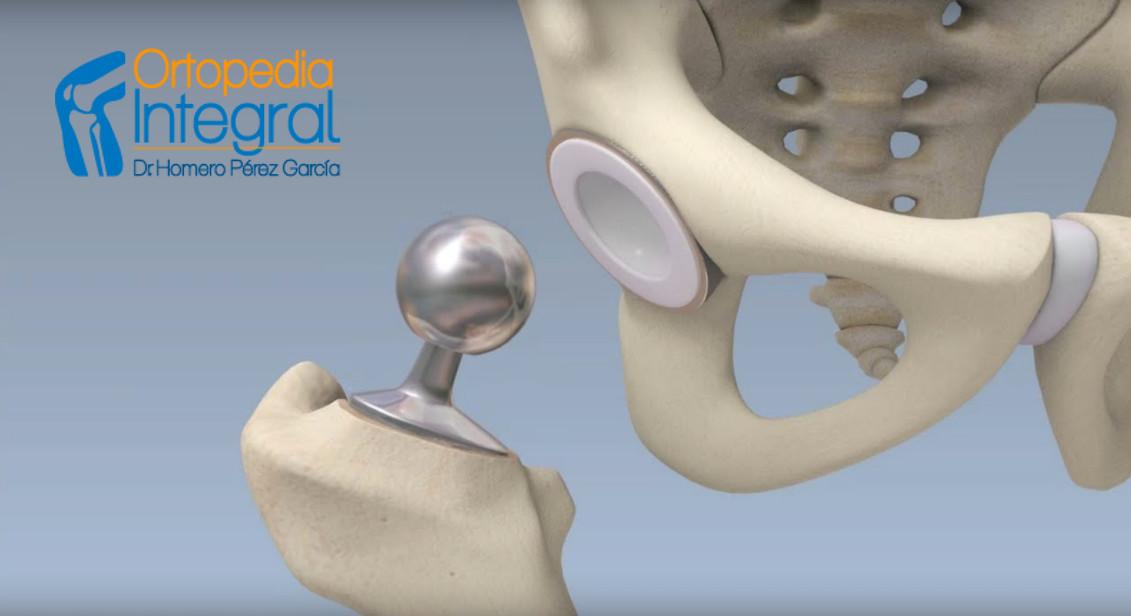 protesis de cadera en CDMX
