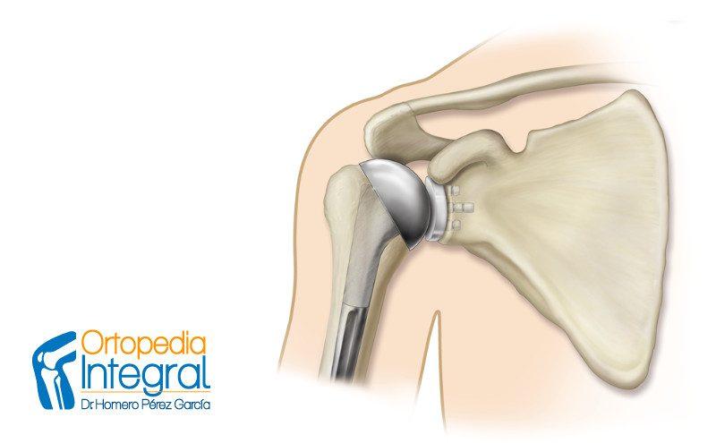 protesis de hombro en CDMX