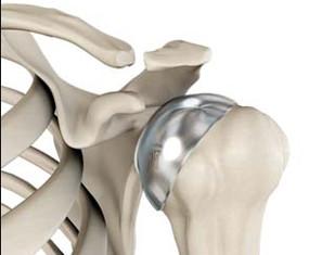 protesis de hombro parcial
