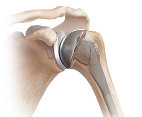 protesis de hombro total